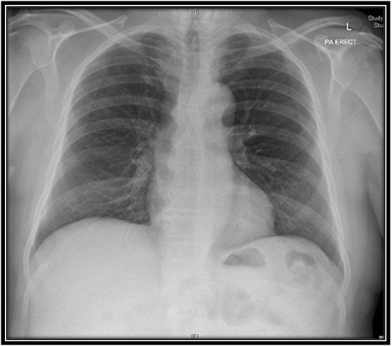 Swslhd medical imaging chest x ray a chest x ray is one of the most commonly performed x rays it is useful to assess heart ribs and lungs and may indicate disease and other conditions sciox Choice Image